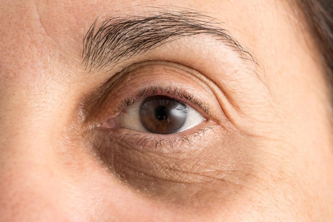 要消除不美觀的黑眼圈,醫生提醒大家四件事。(Shutterstock)