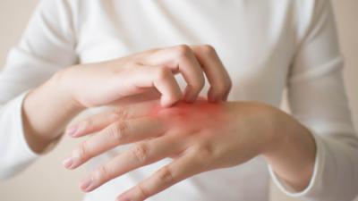 從中華醫學角度,濕疹乃由身體內外的「濕、風、熱」引起。(Shutterstock)