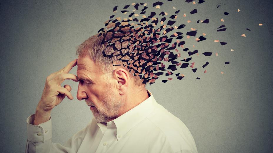 肌小症患者有較高的老年癡呆症風險。(Shutterstock)