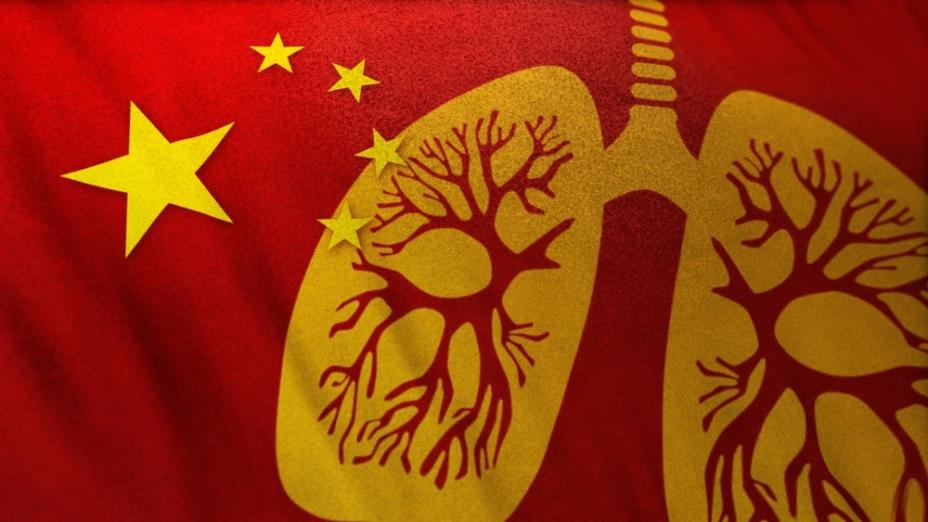 內地疫症肆虐,香港必然受影響,仍然在捱貴豬價之際,現在連口罩也幾乎要賣斷市。(Shutterstock)