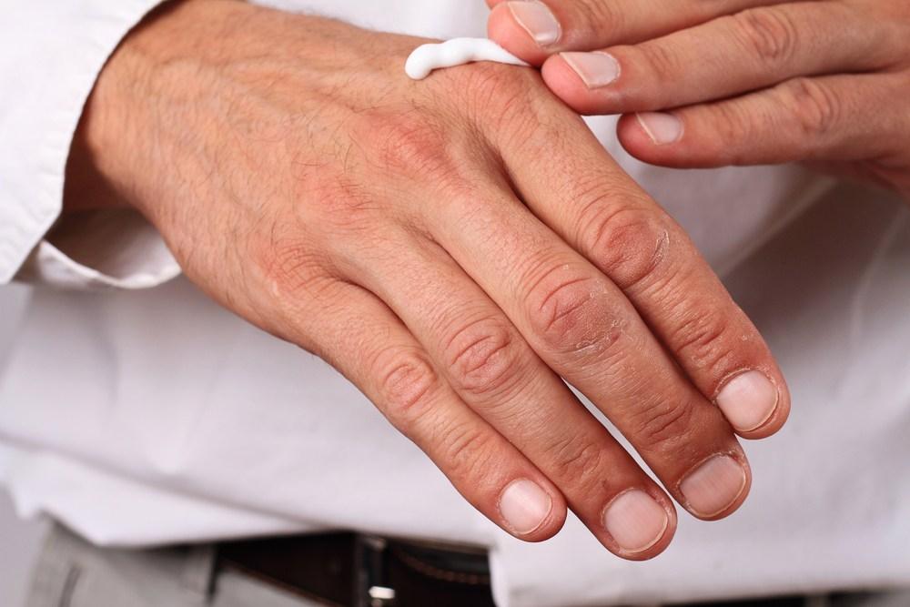 秋冬風高物燥,手足部位常見乾燥龜裂甚至出血。(Shutterstock)