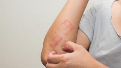 避免皮膚敏感不是要戒口,而是不要過量吃。(Shutterstock)