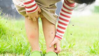 最癢皮膚病──「結節性癢疹」